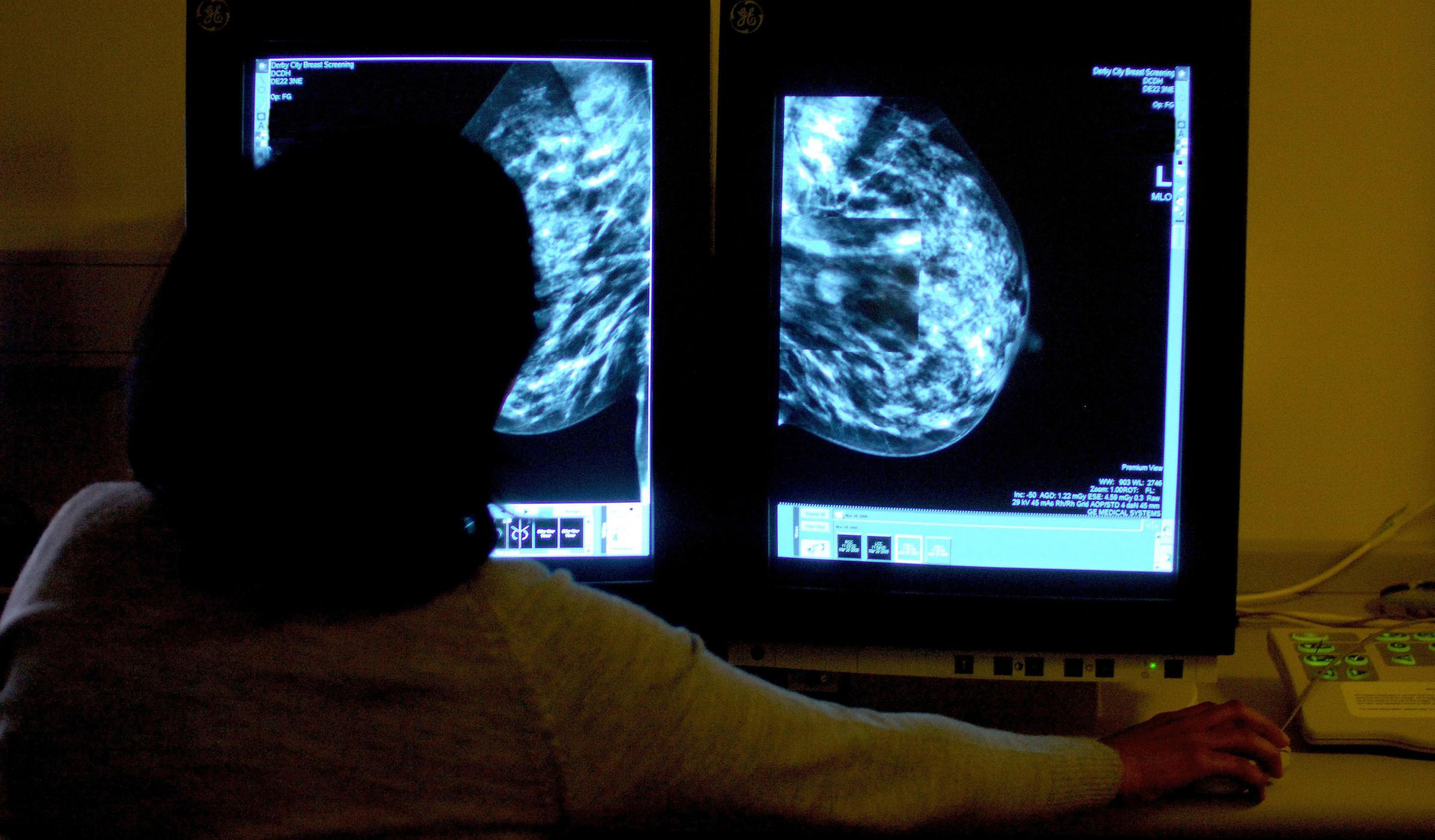 New breast cancer drug approved for NHS use